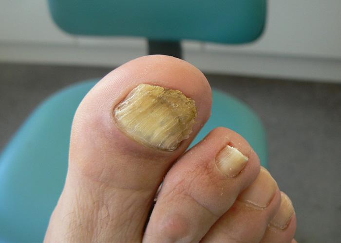 Los medios para el tratamiento del hongo de la uña y los pie